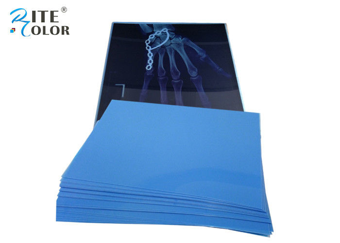 10 * 12 Inch PET Medical Imaging Film Dry X Ray Film For Inkjet Printers